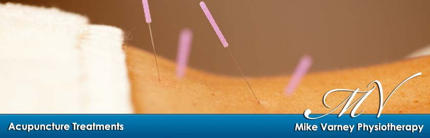 Acupuncture treatments at Mike Varney Physiotherapy in Harlow
