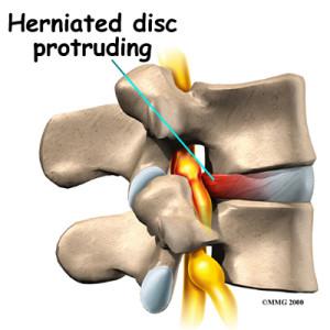 sagittal_section_of_lumbar_disc_herniation