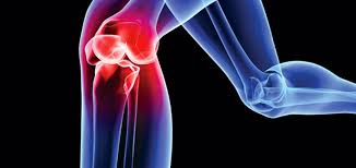 Meniscus Injuries