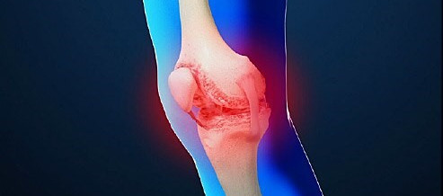 Exercise as Gold Standard for Osteoarthritis